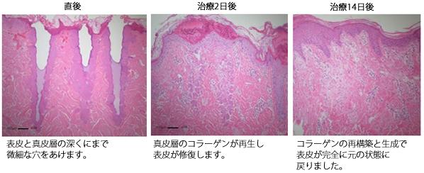皮膚再生のプロセス