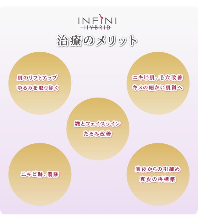インフィニHYBRID-2