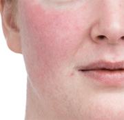 当院の赤ら顔治療