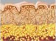 コラーゲン繊維の滅衰と繊維芽細胞の活動が少なることで皮膚は衰えていく