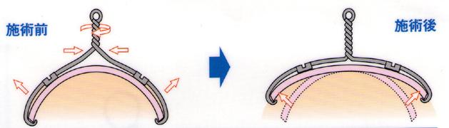 巻き爪矯正・ワイヤー治療(VHO法)